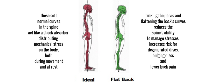 bulging discs ideal posture flat back