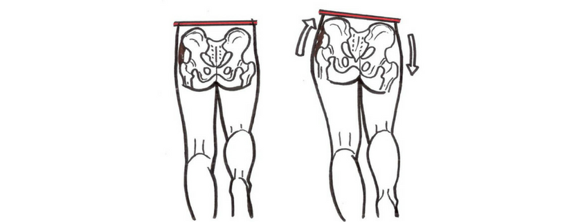 iliotobial band syndrome ITB glutes gait