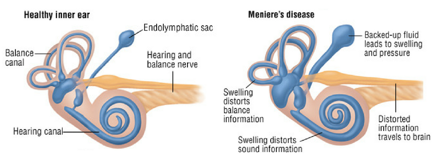 meniere's disease inner ear fluid