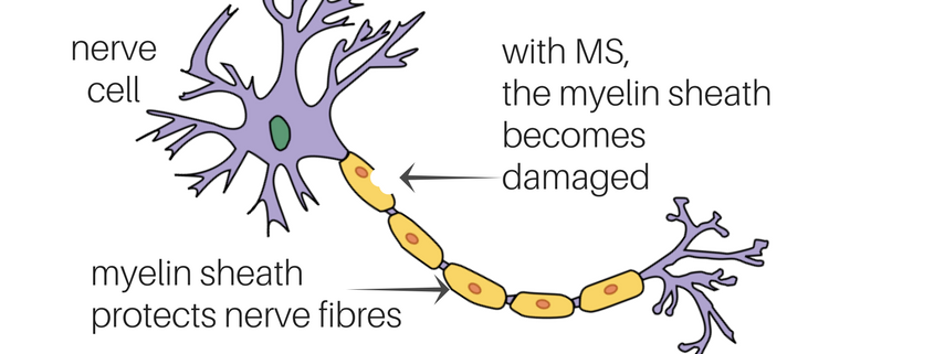 multiple sclerosis myelin damage
