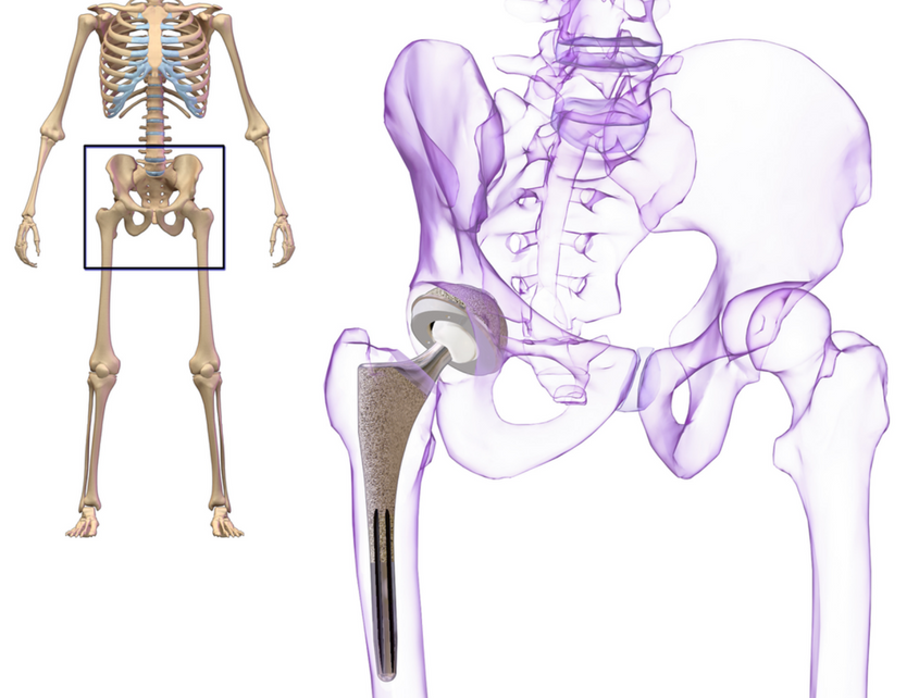 Hip replacement - how to really help recovery and regain normal life ...