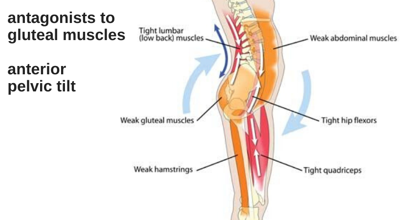 anterior pelvic tilt on weak glute maximus and other muscles to help weak glutes